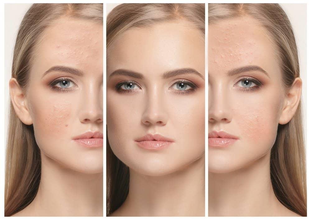 Vitamin A for Skin Care