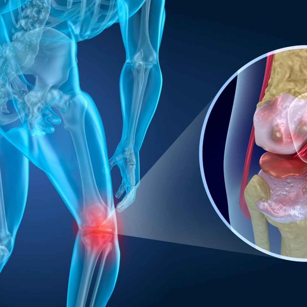 Keeping Your Body Active And Mobile helps supply stability to joints