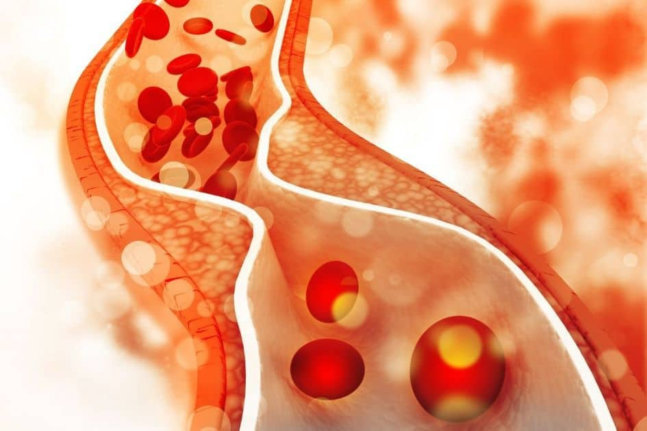 The Cholesterol myth - Cholesterol is not technically a fat; instead, it is classified as a sterol, a combination of a steroid (fat) and alcohol