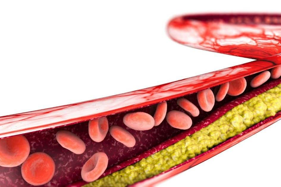 The Cholesterol myth: the truth of a controversial topic