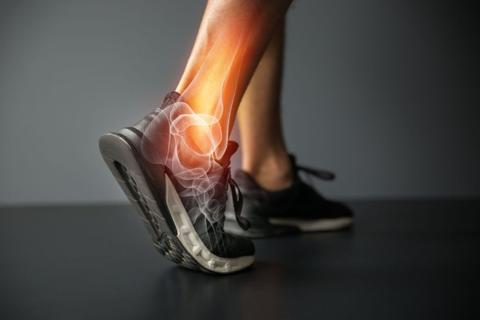 Any physical activity like running can result in an injury
