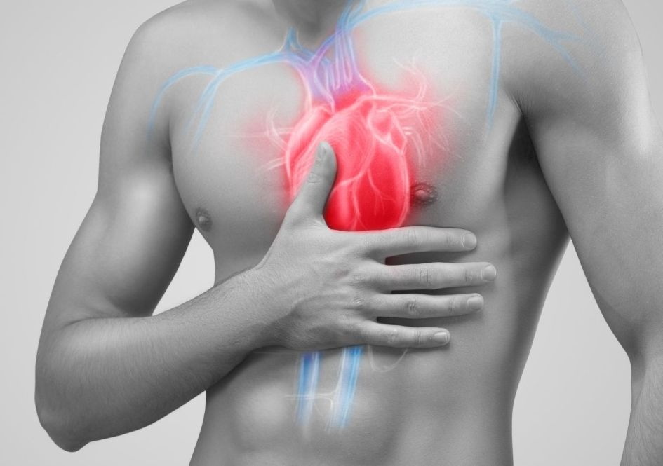 How Can Exercise and Diet Prevent a Heart Attack