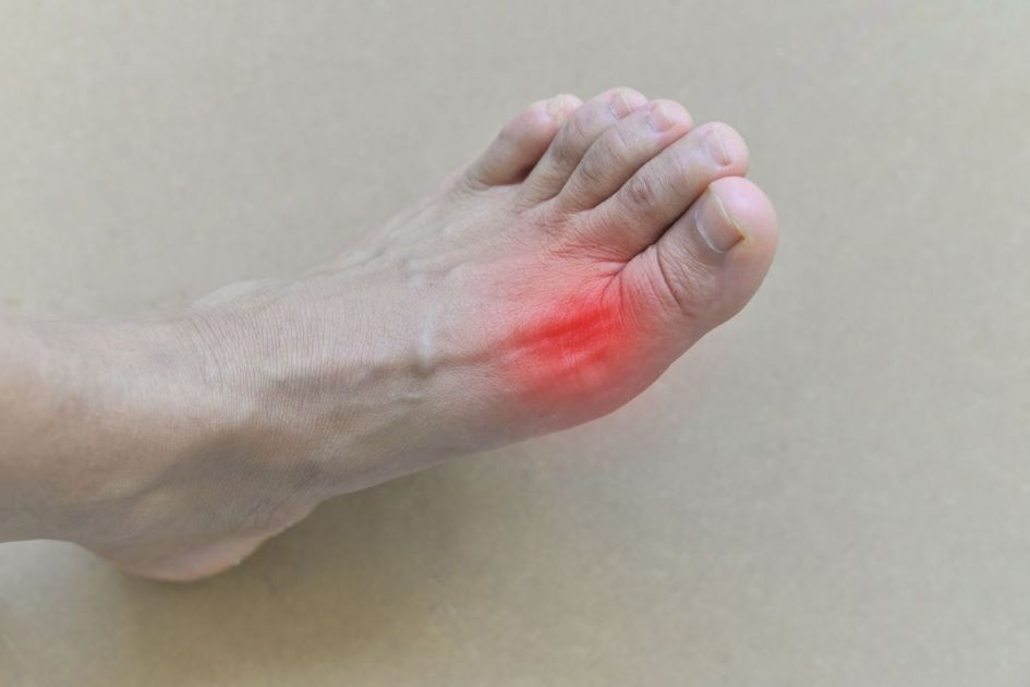 How to Use CBD Oil for Joint Pain caused by Gout