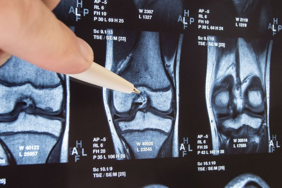How to Use CBD Oil for Joint Pain caused by Osteoarthritis